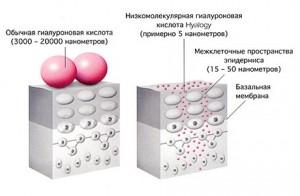 кислота 3